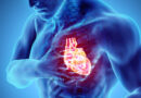How to Save a Life – What to Do When Someone Has Cardiac Arrest